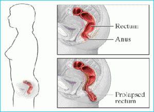 livmoder prolaps symptomer eb masage