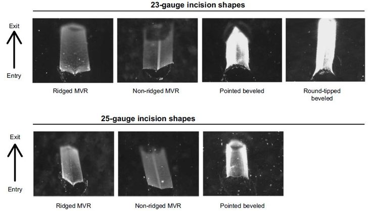Figure 5 Incision shape of 23- and 25-gauge blades with oblique incision.