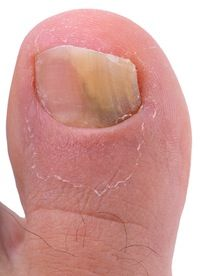 At our Nail Fungus Removal facility in Pittsburgh, PA, we specialize in nail fungus removal. We are experts in removing all varieties of nail fungus, including toe nail fungus. If you are looking for the best nail fungus and toe nail fungus removal service in Pittsburgh, Pa, give us a call today and schedule an appointment! Call Today, and let's get that nail fungus removed tomorrow! 412-223-9733