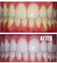 Put a tiny bit of toothpaste into a small cup, mix in one teaspoon baking soda plus one teaspoon of hydrogen peroxide, and half a teaspoon water. Thoroughly mix then brush your teeth for two minutes. Remember to do it once a week until you have reached the results you want. Once your teeth are good and white, limit yourself to using the whitening treatment once every month or two. #Cake