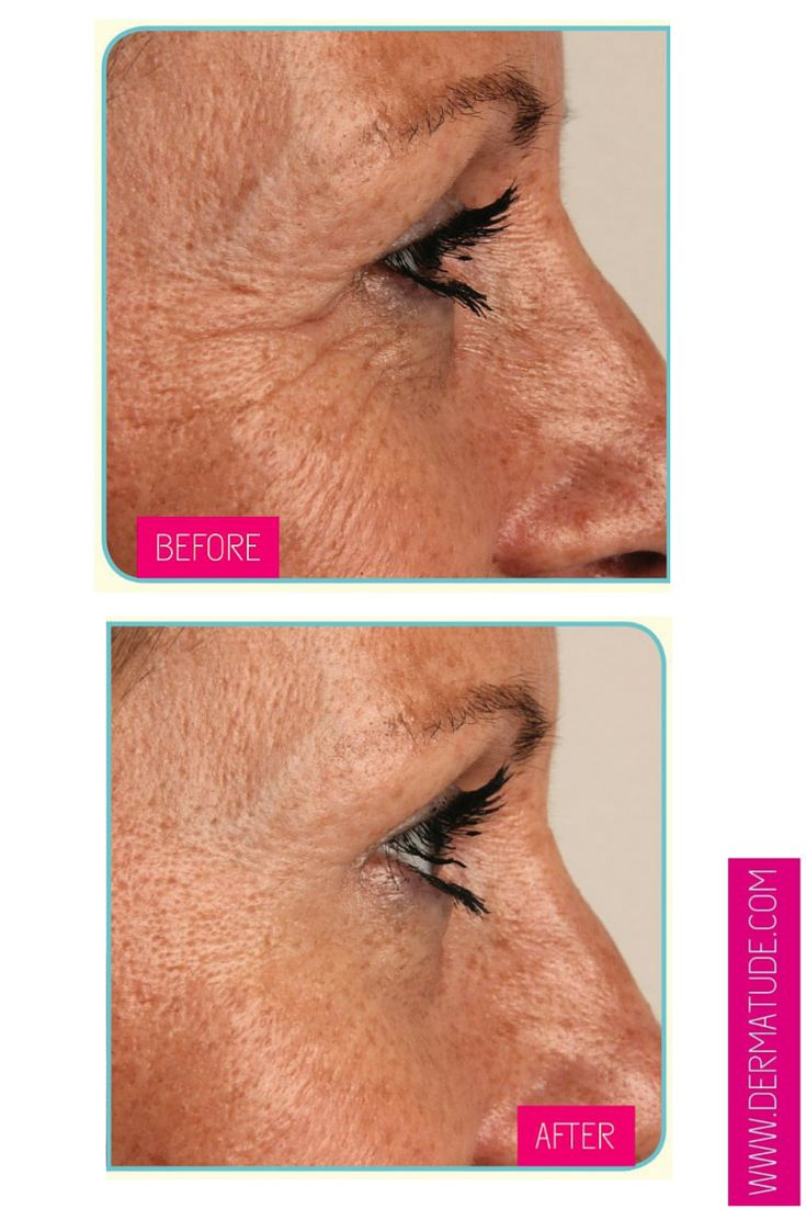 #Dermatude Before and After