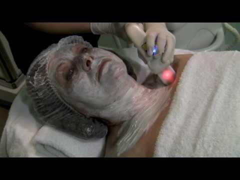 Radiofrecuencia Facial ® | ✔ Todos sus SECRETOS ✔