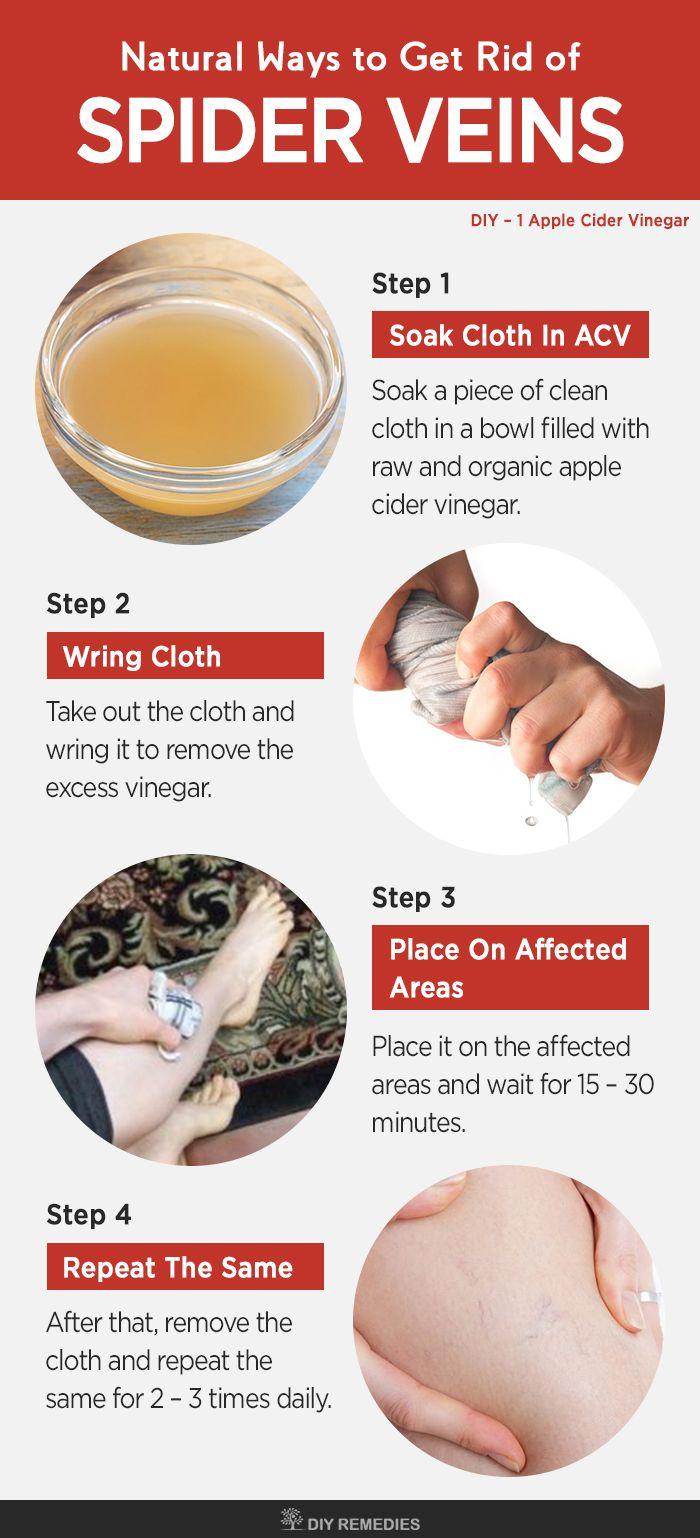 Apple Cider Vinegar Remedies for Spider Veins