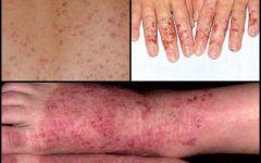 Os Sintomas da Dermatite de Contato