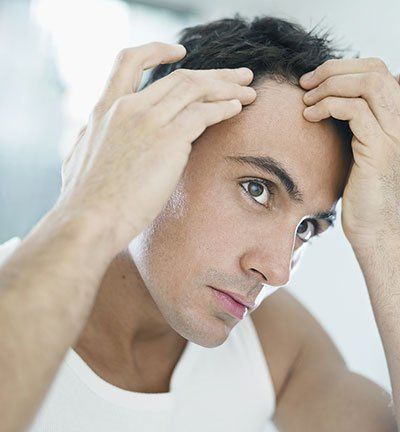 Male Pattern Baldness: 5 of the Best Articles You Must Read   hairlosscureguide.com