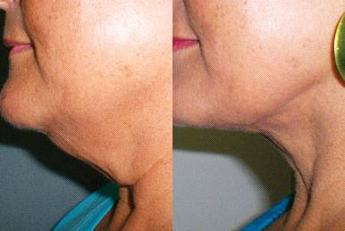 RE9 Advanced neck cream from Arbonne! Before/after - Get results without major surgery mollyerjavec.arbonne.com