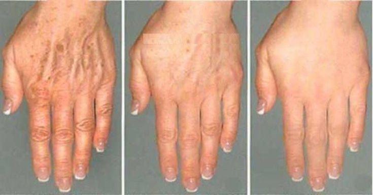3 domáce recepty na odstránenie vrások a pigmentových škvŕn z rúk a tváre. - Báječné zdravie