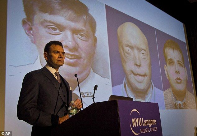 Dr. Eduardo Rodriguez, who led the surgical team that did the face transplant on Patrick H...