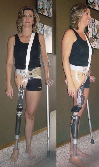 nude female leg amputees