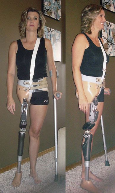 limb lengthening surgery cost in bangalore dating
