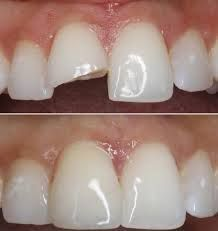 If you've got a cracked or broken tooth or teeth, you will be a candidate for dental bonding. Dental bonding involves the applying of a tooth-colored plastic adhesive that your tooth doctor can form and polish to match the encompassing teeth. Dental bonding is comparatively painless and is sometimes performed while not physiological state. If you're having tooth bonding done on many teeth.: