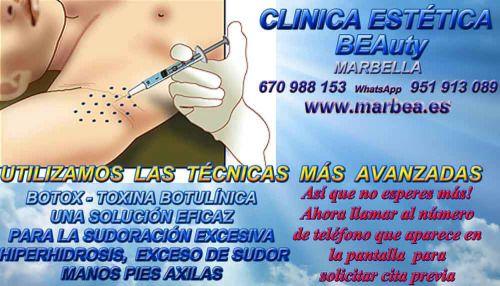 CLINICA ESTETICA MARBELLA http://www.marbea.es/botox-en-marbella-clinica-estetica-marbella-tratamientos-de-botox-toxina-botulinica-para-la-sudoracion-excesiva-cabeza-repentina-hiperhidrosis-exceso-de-sudor-manos-pies-axilas-cabeza-bajo-los-se/