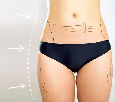 Laser Hair Removal by Jill Zander Skin Rejuvenation #Laser_Skin_Treatment #medispa #Permanent_Hair_Removal