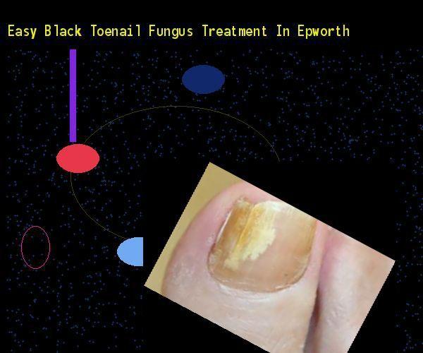 Easy black toenail fungus treatment in epworth  Nail Fungus Remedy. You have no