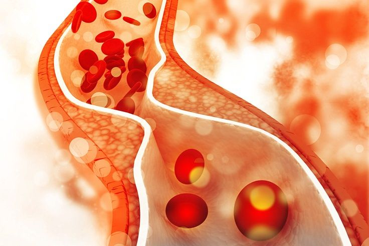 Lower your cholesterol in a natural way
