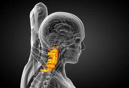 The bones in the neck region of the spine, known as cervical vertebrae, are numbered 1 to 7 beginning from the top. Discs serve as cushions between the vertebrae. The C3 and C4 disc -- commonly noted as C3-C4 -- is between the third and fourth cervical vertebrae. When a disc tears, or herniates, its gel-like center is pushed outward and can exert...