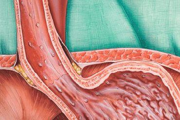 Hernie hiatale - La hernie hiatale est une affection courante chez les adultes de plus de 50 ans. La hernie hiatale, ses symptômes et traitements:  Mécaniquement voici se qui se produit au niveau de votre tube digestif –  Normalement l'œsophage rejoint l'estomac juste en dessous du diaphragme. La hernie hiatale se produit quand la partie supérieure de l'estomac glisse au travers du diaphragme (par une ouverture appelée hiatus œsophagien) pour se retrouver au dessus de celui-ci