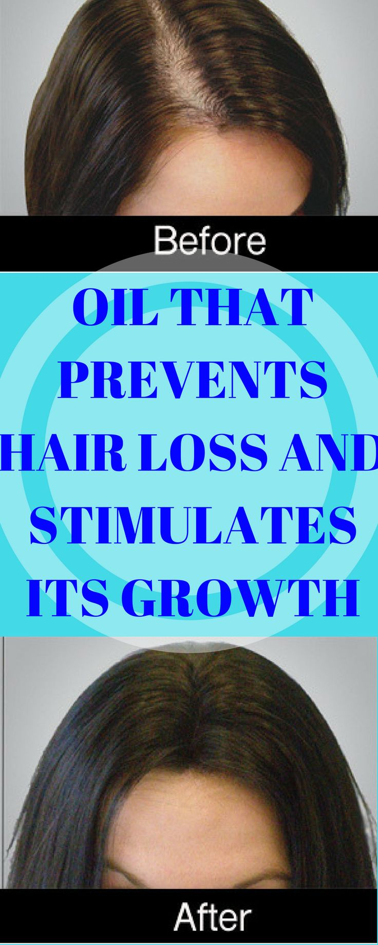 Oil That Prevents Hair Loss and Stimulates Its Growth