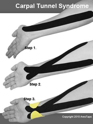 Kinesio taping for carpal tunnel