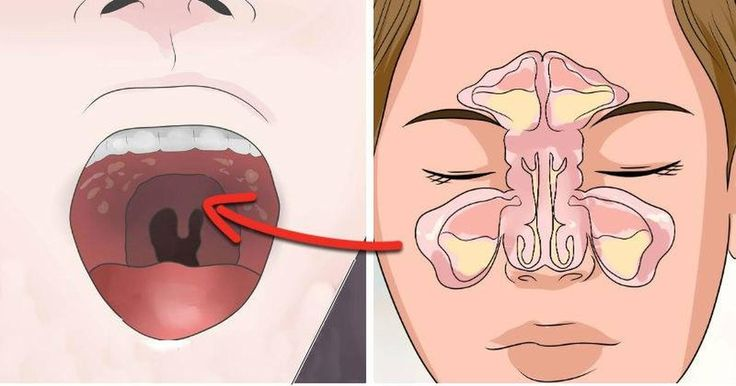 If You Get Sinus Headaches or CONSTANT Congestion You Need To Check For This Hidden Connection!