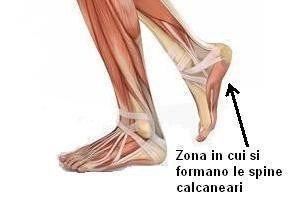 Spina calcaneare - La spina calcaneare (o sperone) è una esostosi, cioè una neoformazione benigna di osso, nella zona inferiore del tallone. Generalmente, si forma a livello mediale del calcagno, all'origine della fascia plantare.