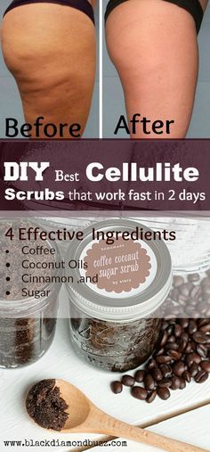 DIY Best Cellulite Scrubs That Work Fast In 2 Days! With most Powerful 7 Homemade Remedies to Remove Cellulite Naturally Effective Ingredients • Coffee • Coconut Oils • Cinnamon ,and • Sugar