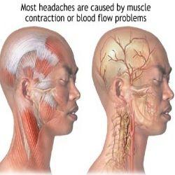 Herbal Remedies For Headaches - Natural Treatments & Cure For Headaches | Ayurvedic Natural Cure Supplements