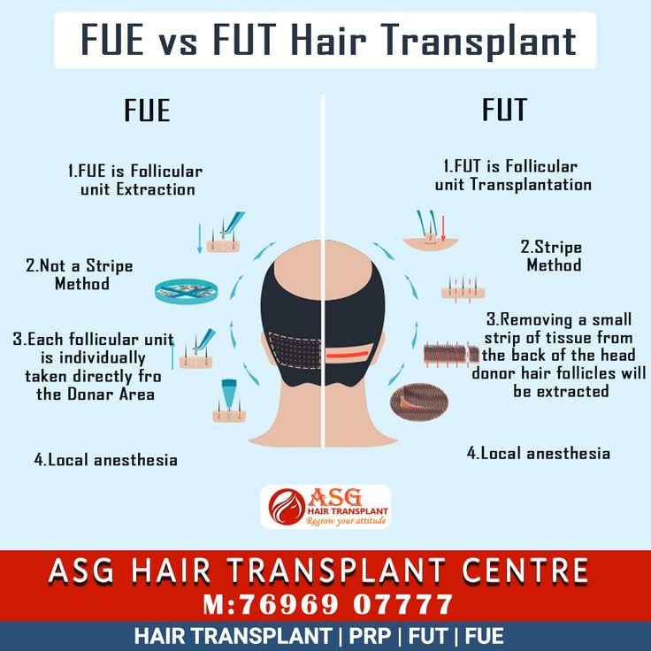 FUE vs FUT Hair Transplant Hair transplant, Best hair