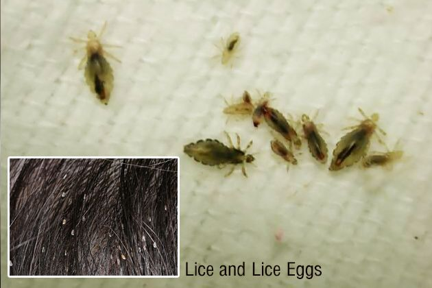 how to kill lice eggs home remedies