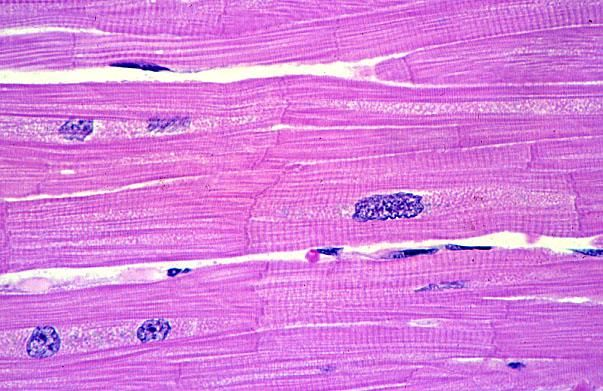 Cardiac muscle tissue is striated, branched, and has 1-2 nuclei. Cardiac muscle tissue can be recognized by intercalated disks (dark thickened part). Electrical signals at these junctions allow a wave of excitation from cell to cell, aiding in the function of the heart (see chapter 19 for more details). Cardiac muscle cells, commonly called myocytes or cardiomyocytes, are bigger than smooth muscle cells and smaller than skeletal muscle cells. They control involuntary movement (the heart).