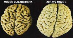 4 najhoršie toxíny pre váš mozog: Vyhnite sa im za každú cenu!