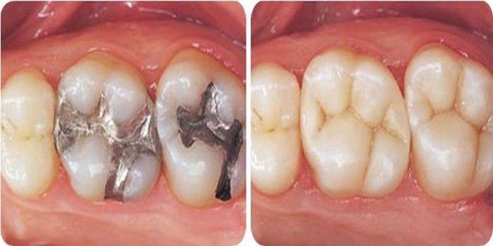 Enlever vos amalgames : Le matériau de remplissage dentaire le moins cher, l'argent (amalgame) est dangereux, car il contient du mercure.