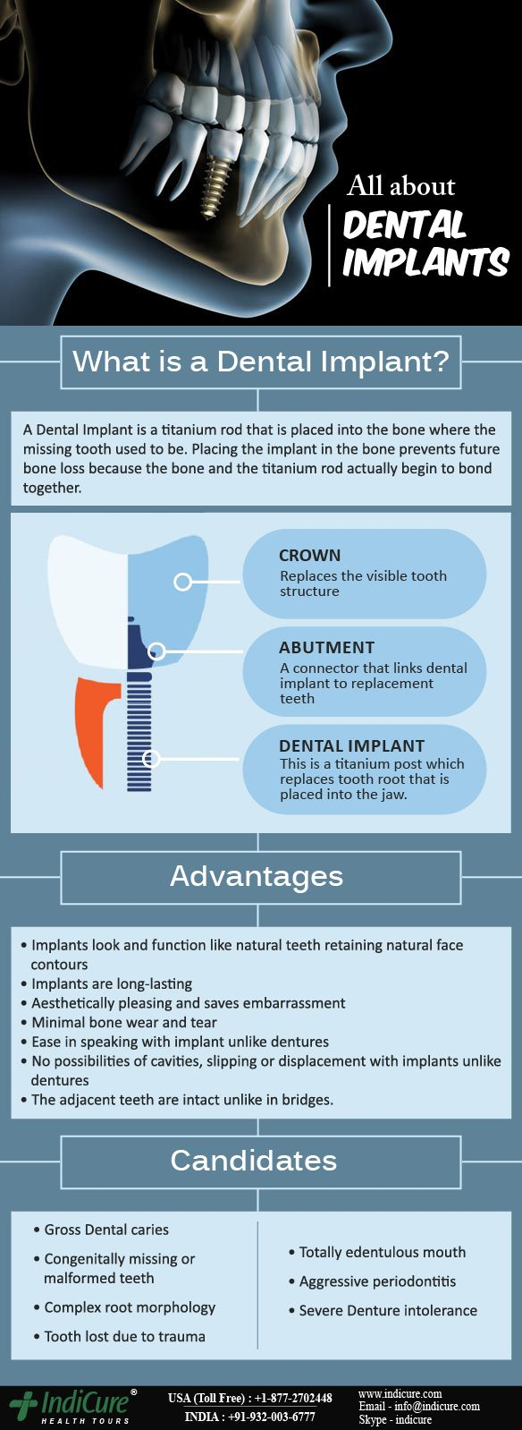 Teeth restored with dental implants can't get cavities! An replacement tooth, or crown, doesn't decay like a natural tooth, but you still must brush, floss and care for it and your surrounding natural teeth and gums in the same manner as natural teeth. Regular professional cleanings and dental check-ups also are essential. #dentalimplants #dentistry