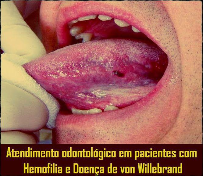 Atendimento odontológico em pacientes com Hemofilia e Doença de von Willebrand | OVI Dental