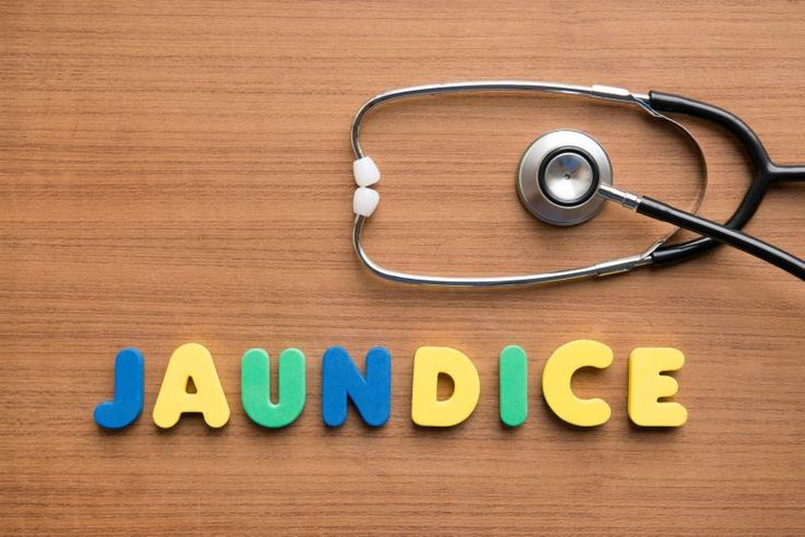 #Jaundice is closely associated with the overall condition of the #liver https://goo.gl/NejU8u