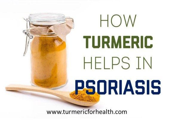 how to know if you have psoriasis on your scalp