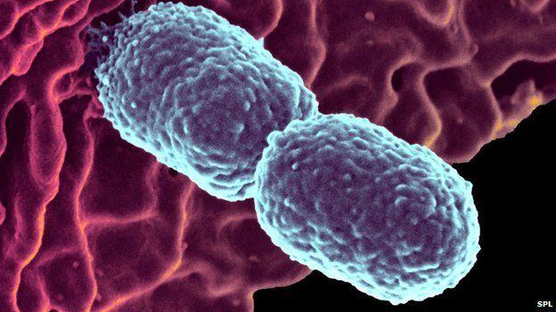Klebsiella pneumonia bacteria
