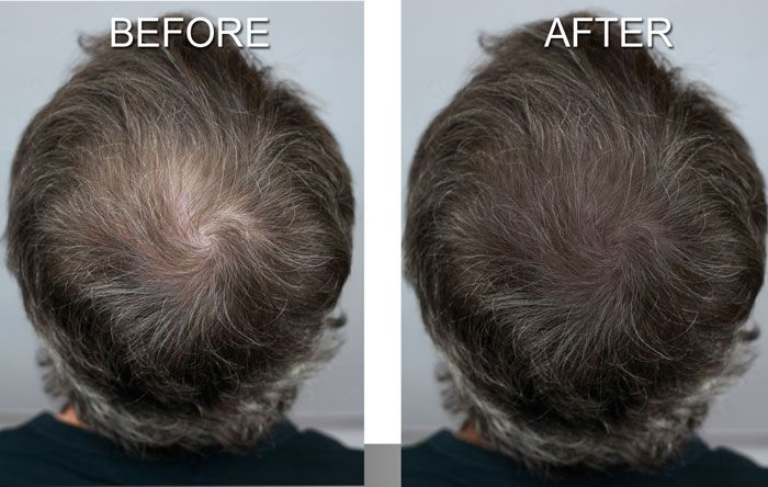 Before and After Photos of the Hair Loss Solution - MicroArt Semi Permanent Makeup Scalp Shading