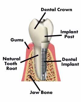 wondering what a dental implant is?