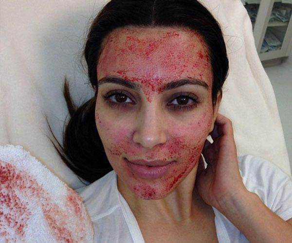 "Kim Kardashian made headlines in 2014 when she underwent a vampire facial with BFF Jonathan Cheban by her side; check out this video of the process! According to Elle, Kim had several needles stuck into her face by way of a Dermapen. The report indicates that this type of facial ""is meant to stimulate collagen and elastin fibers, which makes your skin smoother and all around clearer."""