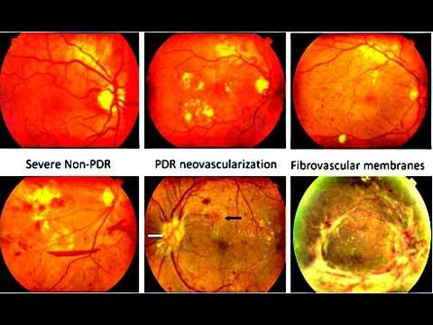 Diabetic Retinopathy Causes Symptoms Diagnosis and Treatment