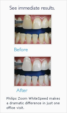 We offer the Zoom Whitening procedure for whiter teeth and a beautiful smile.