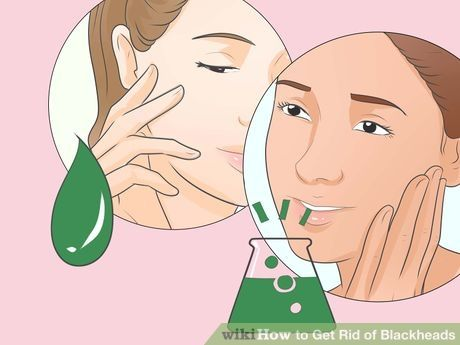 Image titled Get Rid of Blackheads Step 8