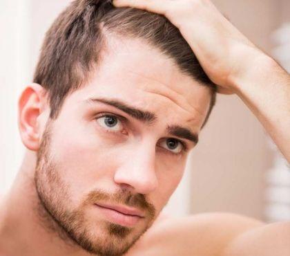 Frisuren Mit Geheimratsecken Für Männer Haarschnitt Haaransatz