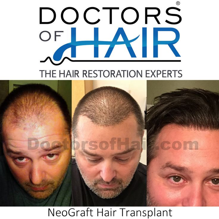 Schedule Your Consultation 📲 (888) 676-6027 . . . . . . #HairLoss‬ #HairGrowth‬ #Alopecia‬ #NeoGraft #ThinningHair‬ #Balding‬ #BaldSpots‬ #HairTransplant‬ #Neograft‬ #Fue‬ #HairReplacement‬ #ThinHair‬ #Hair‬ #ThickHair‬ #HairDoctor‬ #CurlyHair‬ #StraightHair‬ #BlondHair‬ #Brunette‬ #HairRestoration‬ #DoctorsofHair‬ #Chicago‬ #LasVegas‬ #Vegas‬ #Charlotte‬ #Milwaukee‬ #GreenBay‬ #Omaha‬ #Denver‬ #Tampa‬ #Albuquerque‬