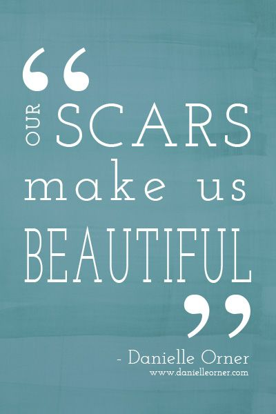 Beautiful Scars - quote by Danielle Orner