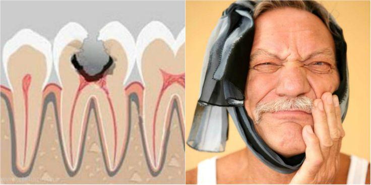 Домашнее средство от зубной боли