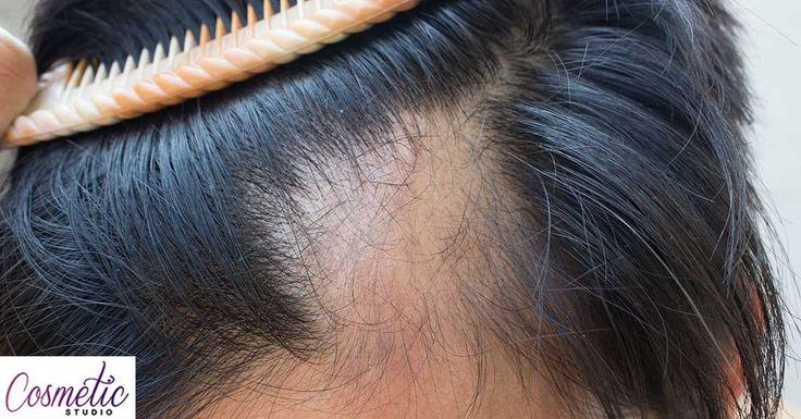 Two thirds of men lose most of their hair after 60, that's just the way things are. Male pattern baldness, or alopecia, is a receding hairline brought about by an excess of androgens or by genetic factors. Balding usually starts with the hairline receding into an 'M', or with a loss in thickness at the vertex.