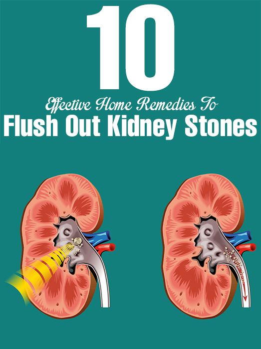 Kidney stones are common condition observed in both men & women. Here are remedies you can try to give a verdict on which kidney stone ...