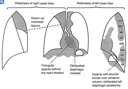 what is the relationship between a pneumothorax and atelectasis
